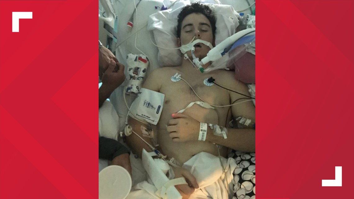 Vaping caused North Texas teen's lungs to fail, doctors say