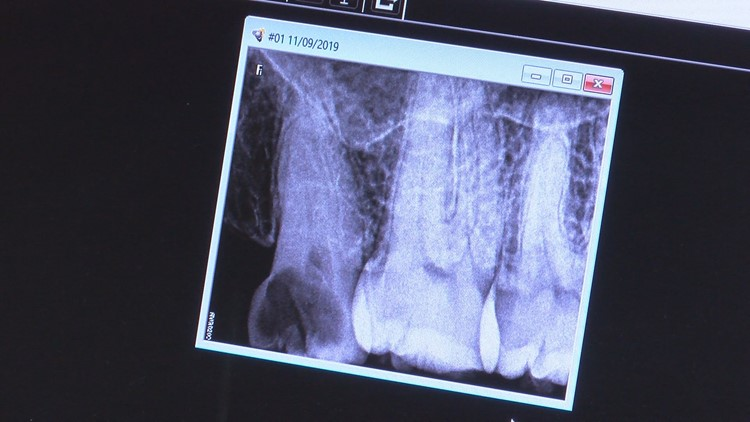 X-Ray of patients teeth at Halim Clinic