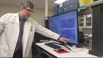 UToledo researchers find algal bloom toxins are more harmful to certain people