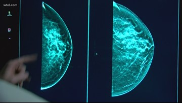 3-D mammography brings clarity to fight against breast cancer